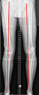 right-leg-done